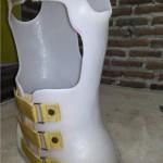 alat koreksi tulang belakang mso